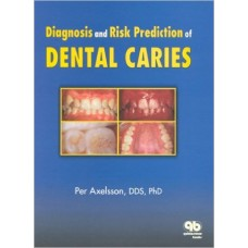 Diagnosis and Risk Prediction of Dental Caries